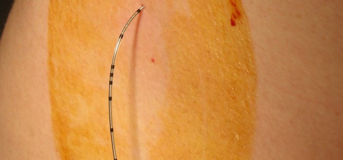 Next generation in epidural pain management