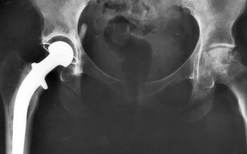 Regional anaesthesia cuts length of hospital stay after hip surgery