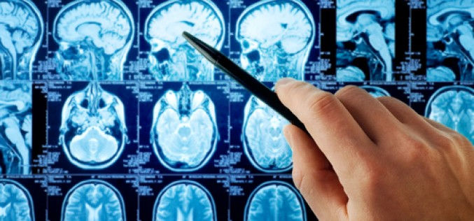 Improving memory deficits following anaesthesia