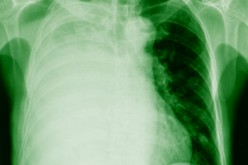Anaesthesia risks for children with pulmonary hypertension too high despite new treatments