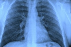 Algorithm interprets breathing difficulties to aid in medical care