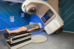 If radiotherapy hurts your skin, it's genetic