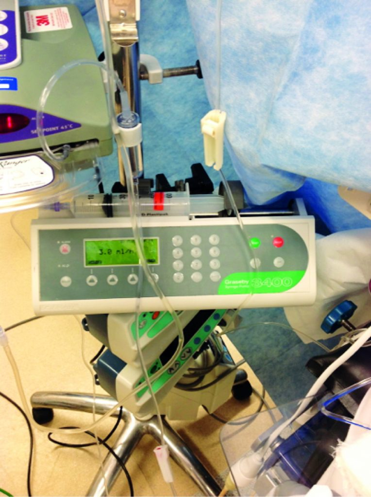 Infusion Systems Perspective : Exploring anaesthetists work as part of a sociotechnical