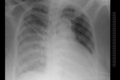 Case study – Unilateral pulmonary oedema