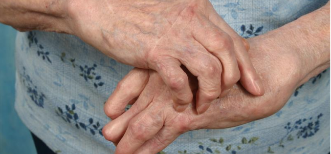 New hope for osteoarthritis patients suffering severe pain in hands