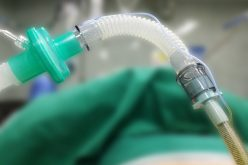 Launch of national guidelines for tracheal intubation and airway management in critically ill patients