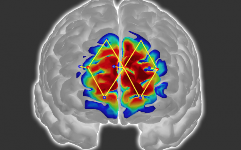 Detecting patients' pain levels via their brain signals