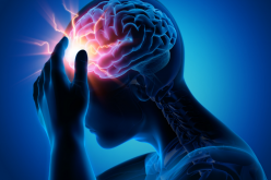 Study highlights need for improvement in migraine care